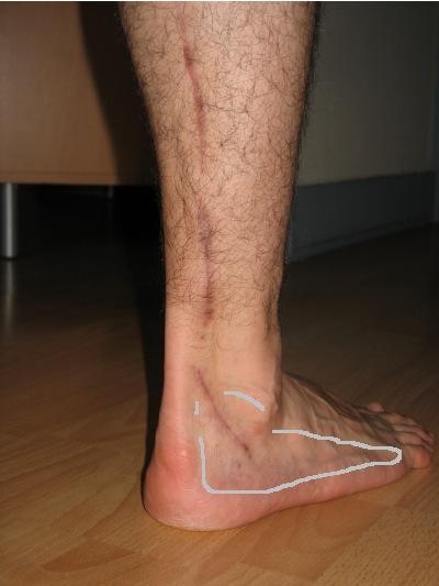 Cicatrice - prélèvement du nerf sural